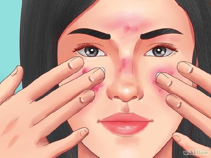 不要用凡士林治疗青春痘或红斑痤疮(酒糟鼻)